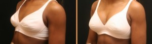 Breast Enlargement Surgery in India