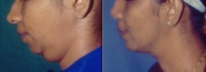 Chin Surgery in Chennai