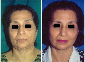 Face Lift Surgery in Chennai