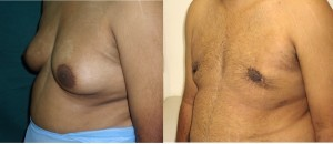 Gynecomastia Surgery in Chennai