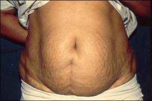 Tummy Tuck Surgery in Chennai